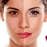درمان گیاهی لکّه های صورت